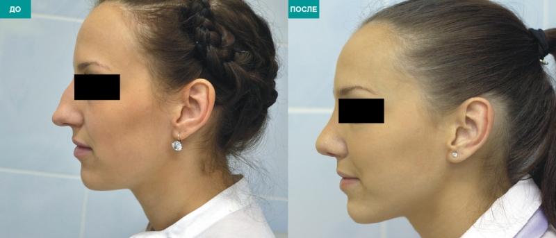 Контурная пластика носа